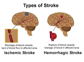 type of stroke