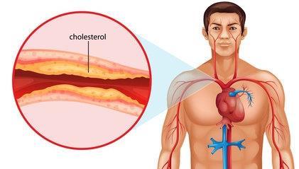 cholestrol